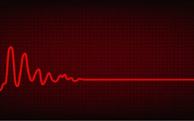 kardiografhma